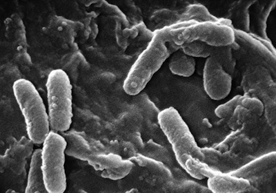 infectious and communicable diseases from bacteria biology essay Infectious diseases essay by dx91,  infectious diseases a communicable disease is an illness caused by micro-organisms it is transmitted from an infected animal .