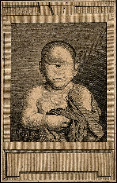 Engraving of an infant with cyclopia, or having one central eye.