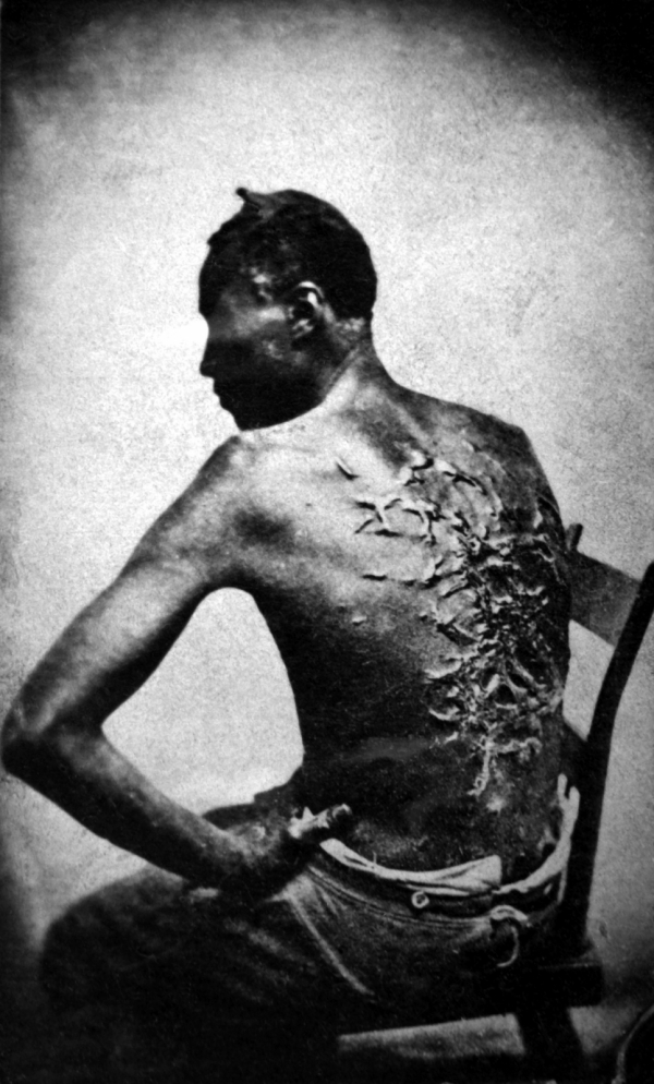 Slave shows his scars from being whipped baton rouge louisiana